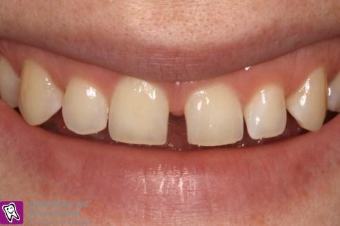 Lückige Front, Wunsch keine Präparation der Zähne